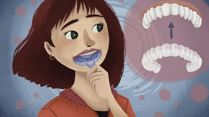 Invisalign- Facts, Procedure and More