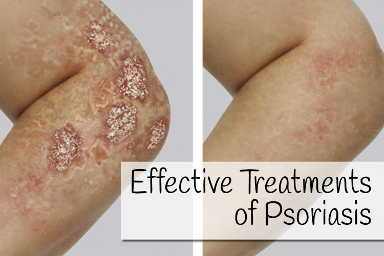 Effective Treatments of Psoriasis